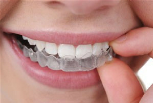 Clear Aligners Blog