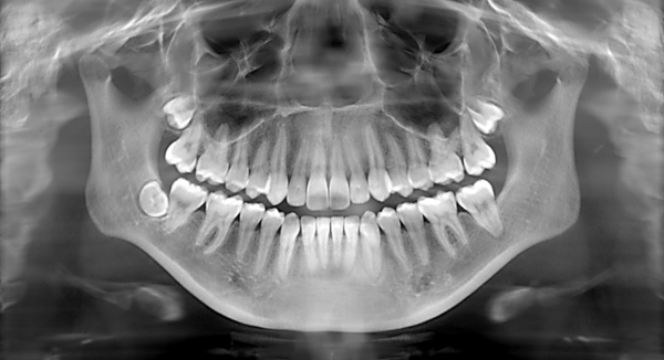 Dental X-Rays: It's Time For Your Close-Up