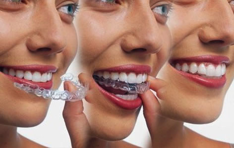 Book your Free Invisalign Consultation