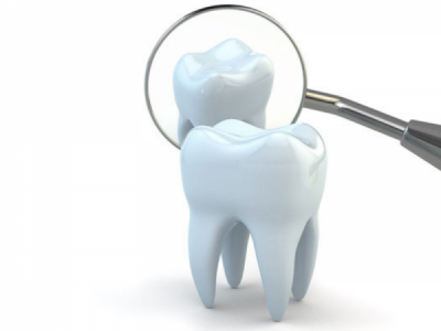 Root Canal Myths: Busted