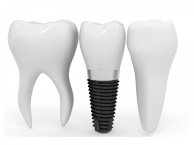 Filling In The Gaps: Dental Implant Basics
