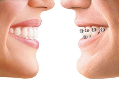 Ever wondered how Invisalign Works?
